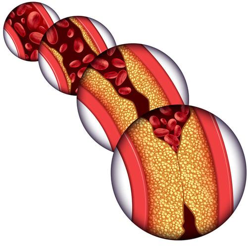 atherosclerosis cholesterol