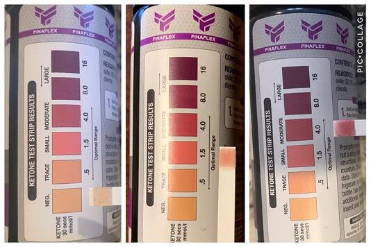 Keto urine test strips are necessary for determining the level of ketones in my blood