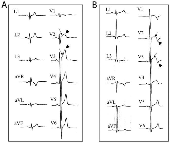 EKG_InsideTracker